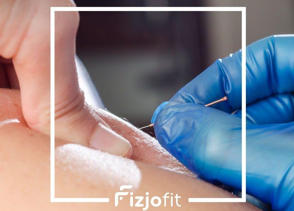 Suche igłowanie w praktyce fizjoterapeuty